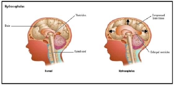 papilloma del plesso corioideo sintomi