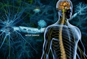 http://img.webmd.com/dtmcms/live/webmd/consumer_assets/site_images/articles/health_tools/ms_overview_slideshow/webmd_rm_photo_of_nerve_damage.jpg