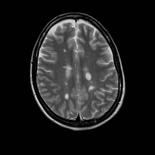 http://www.dizziness-and-balance.com/disorders/central/images/MS/ms%20cortex-above-ventricles.jpg