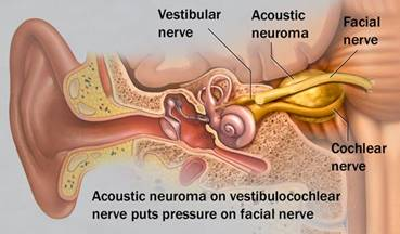http://www.anac.ca/sites/default/files/acoustic-neuroma-3col.jpg