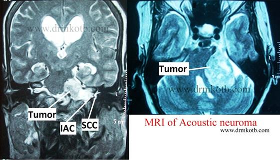 http://www.drmkotb.com/myimages/MRI%20acoustic%20neuroma.jpg