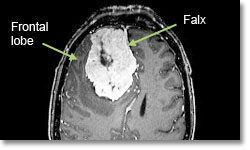http://neurosurgery.ucla.edu/images/Meningioma/Meningioma_Falx_labeled.jpg