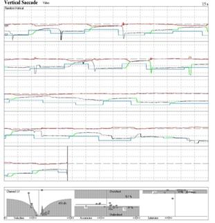 http://www.dizziness-and-balance.com/disorders/central/movement/images/PSP%20aorta-vertical.jpg