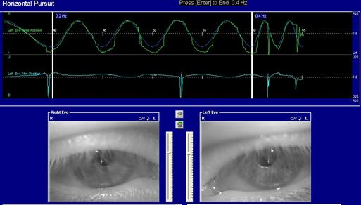 http://www.dizziness-and-balance.com/practice/images/equipment/pursuit-screen.jpg